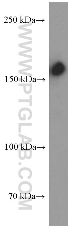 WB analysis of Jurkat using 60179-1-Ig