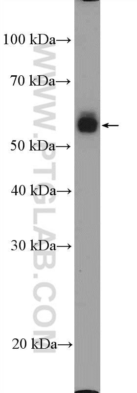 WB analysis of HL-60 using 17000-1-AP