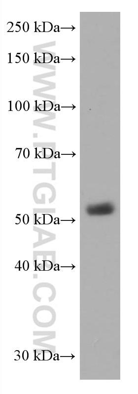 WB analysis of pig thymus using 60173-3-Ig