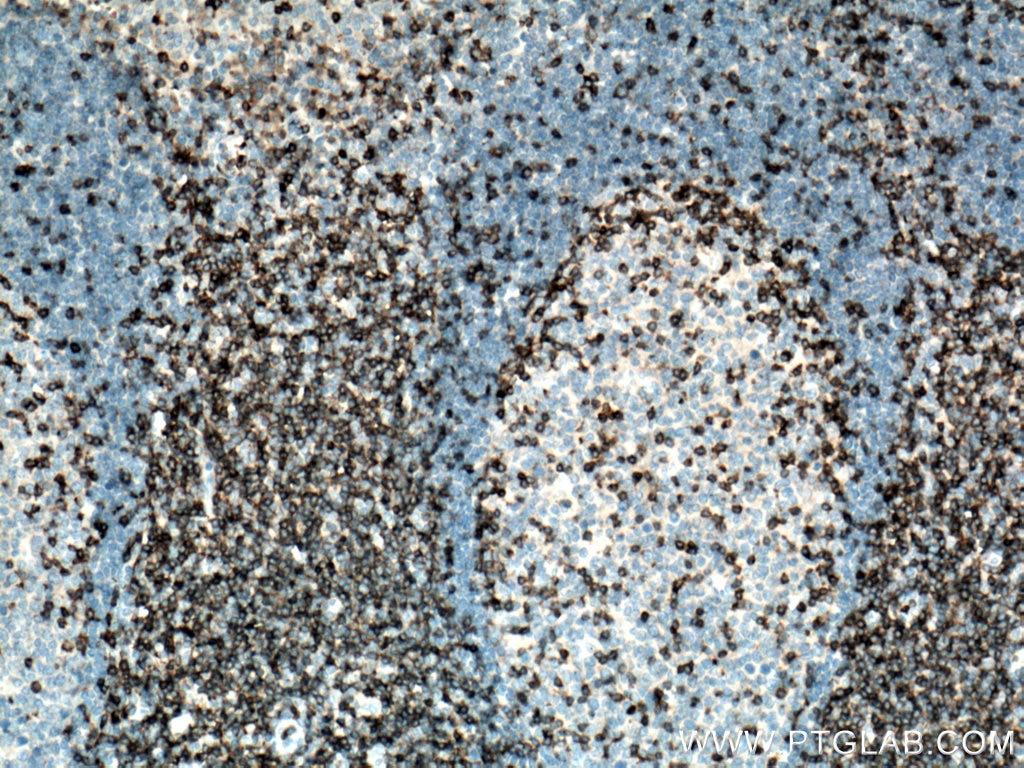 IHC staining of human tonsillitis using 12837-2-AP