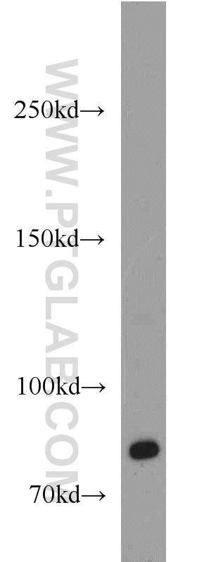 WB analysis of HeLa using 18160-1-AP
