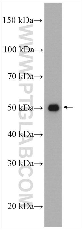 WB analysis of human placenta using 17952-1-AP
