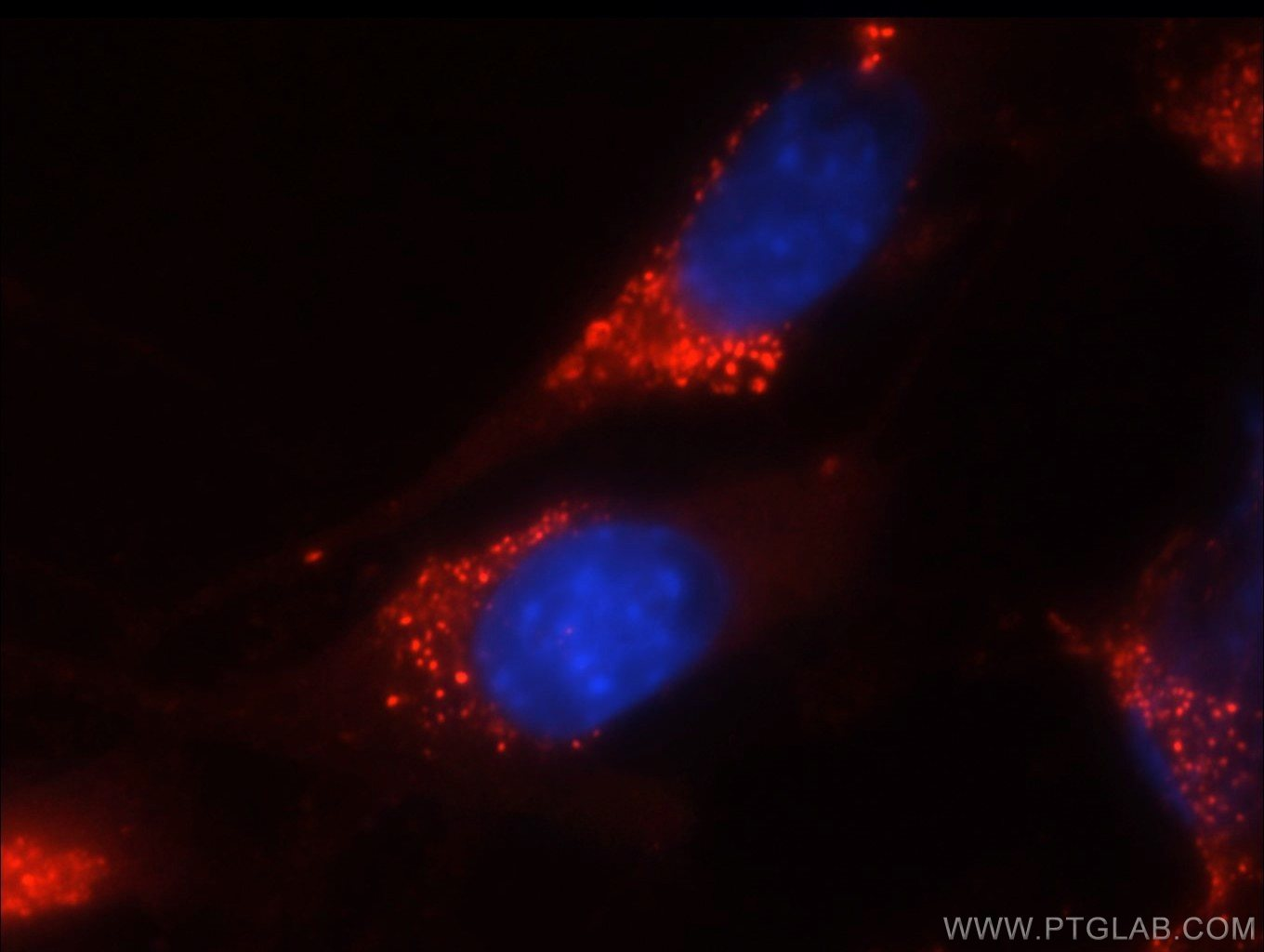 IF Staining of NIH/3T3 using 60006-1-Ig