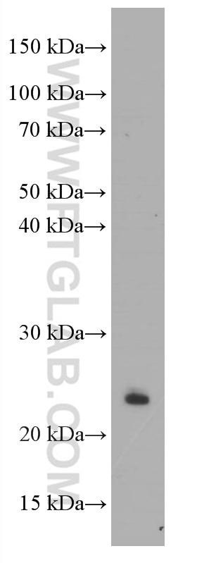 WB analysis of jurkat using 60194-1-Ig
