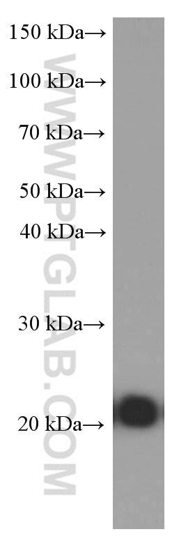 WB analysis of Jurkat using 60181-1-Ig