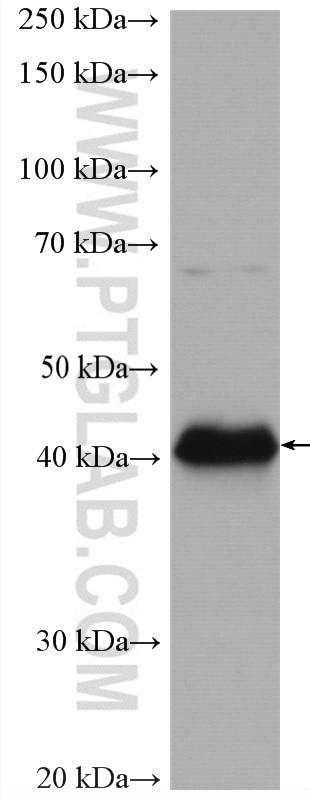 WB analysis of Daudi using 28158-1-AP