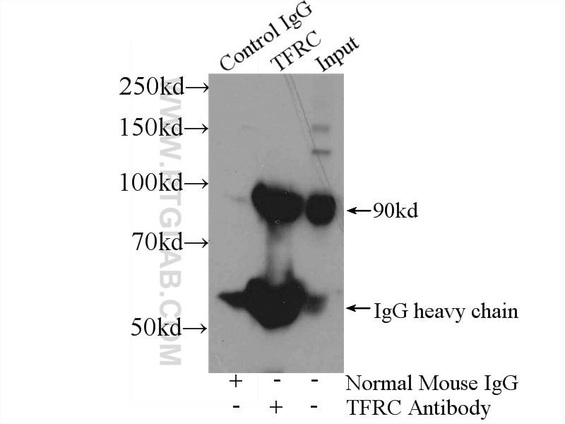 IP experiment of HeLa using 66180-1-Ig