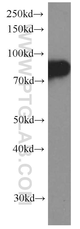 CD71 Monoclonal antibody