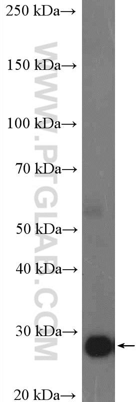 WB analysis of human placenta using 20597-1-AP