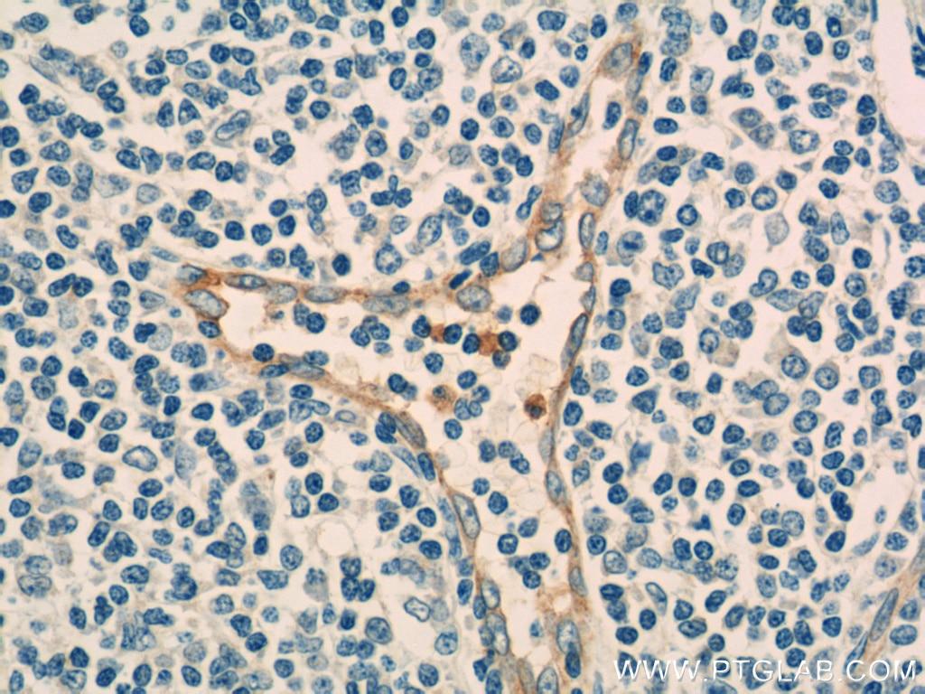 CD93 Polyclonal antibody