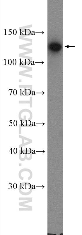 WB analysis of A431 using 13773-1-AP