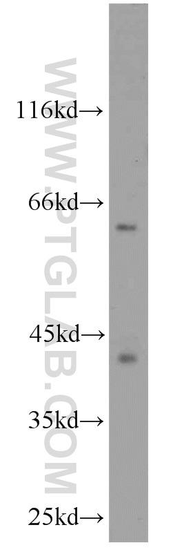 CDK9 Polyclonal antibody