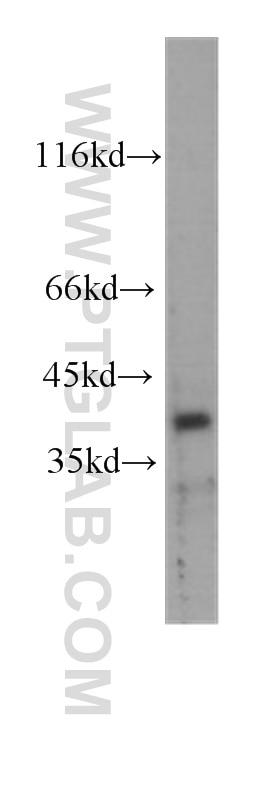 CDX2 Monoclonal antibody