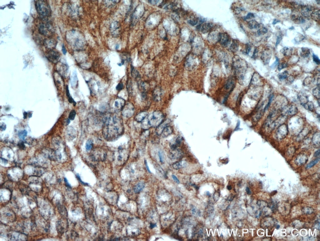 IHC staining of human colon cancer using 19496-1-AP