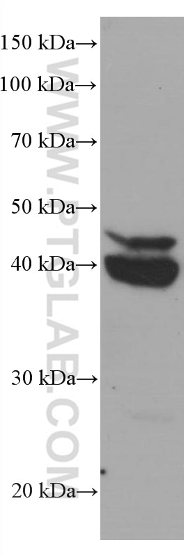 WB analysis of HeLa using 66649-1-Ig