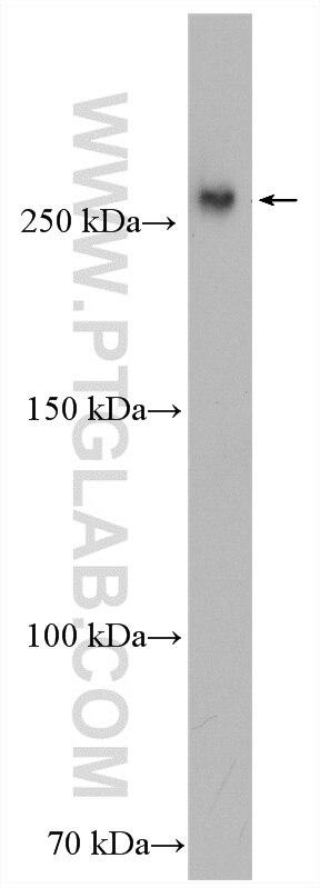 WB analysis of Jurkat using 25235-1-AP