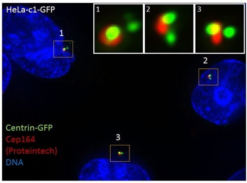 IF Staining of HeLa cells using 22227-1-AP
