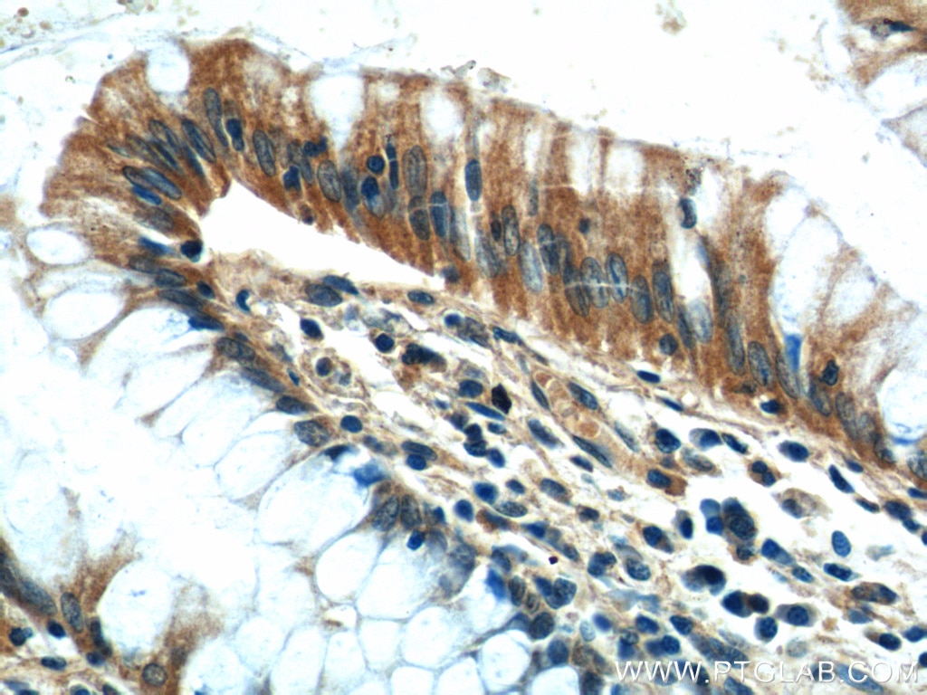 IHC staining of human colon using 22227-1-AP
