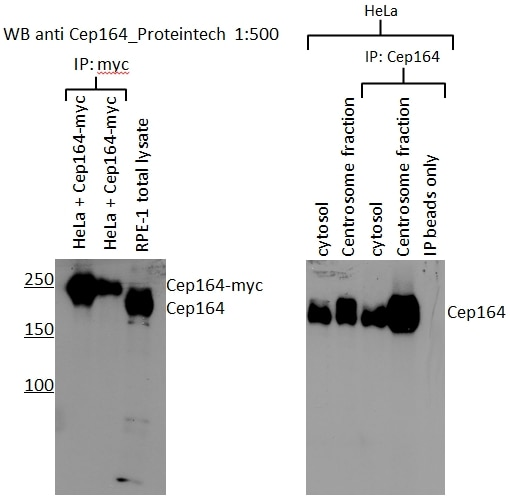 IP experiment of RPE1 cells using 22227-1-AP