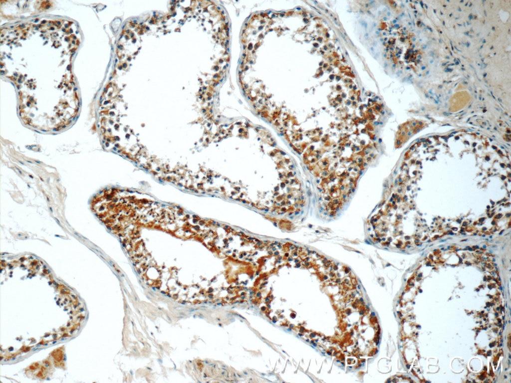 IHC staining of human testis using 23891-1-AP