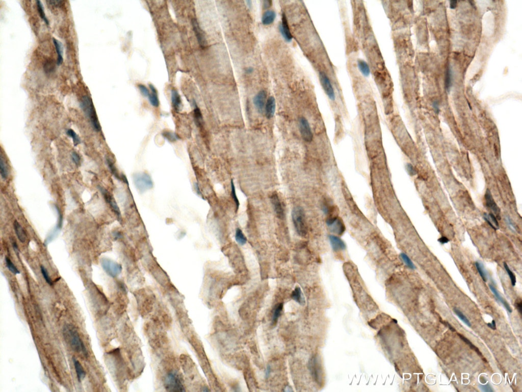 IHC staining of mouse heart using 25731-1-AP