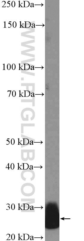 WB analysis of human plasma using 26050-1-AP