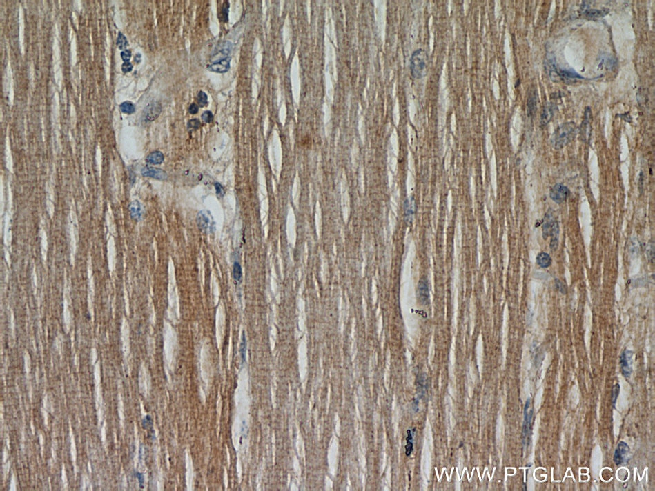IHC staining of human skeletal muscle using 10394-1-AP