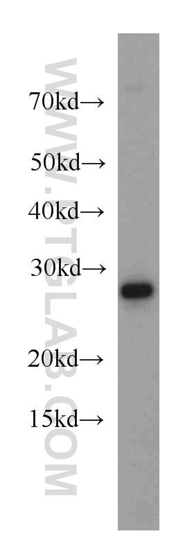 WB analysis of HeLa using 20639-1-AP