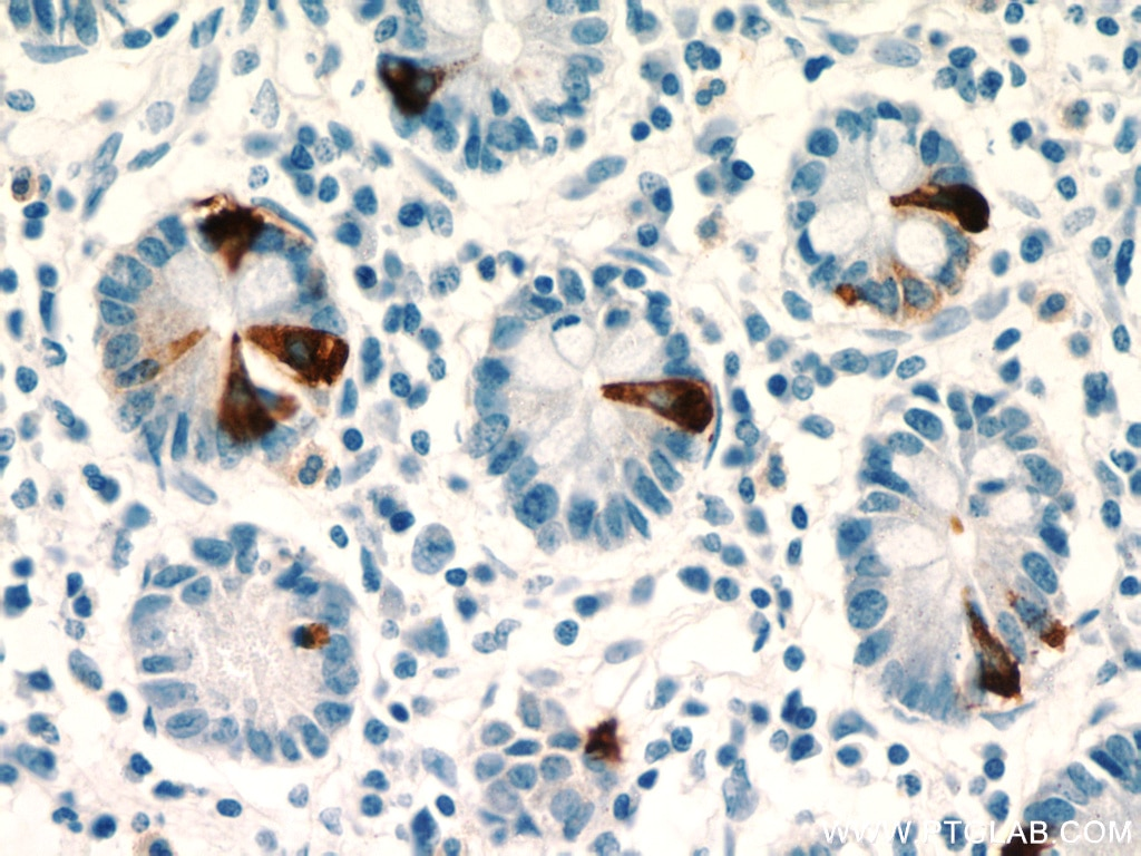 IHC staining of human small intestine using 23342-1-AP