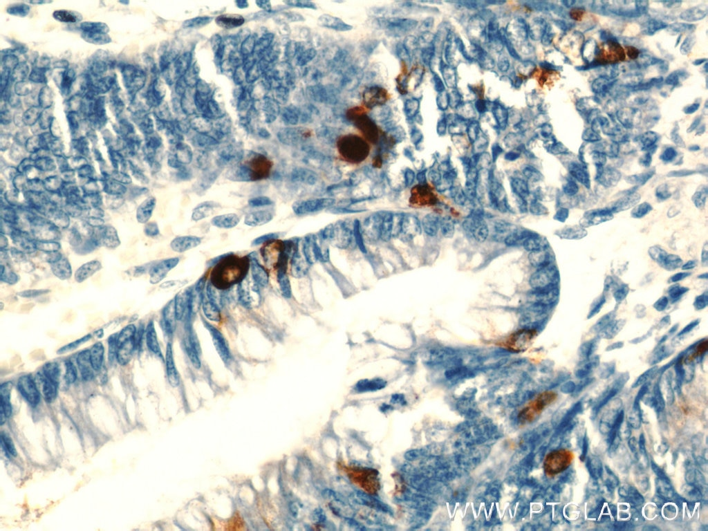 IHC staining of human colon using 23342-1-AP