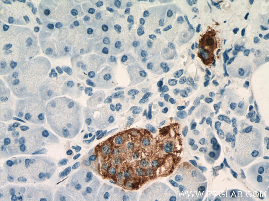 IHC staining of human pancreas using 60135-1-Ig