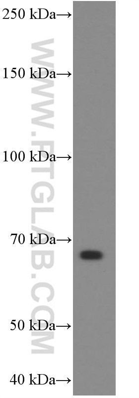 WB analysis of rat pancreas using 60135-1-Ig