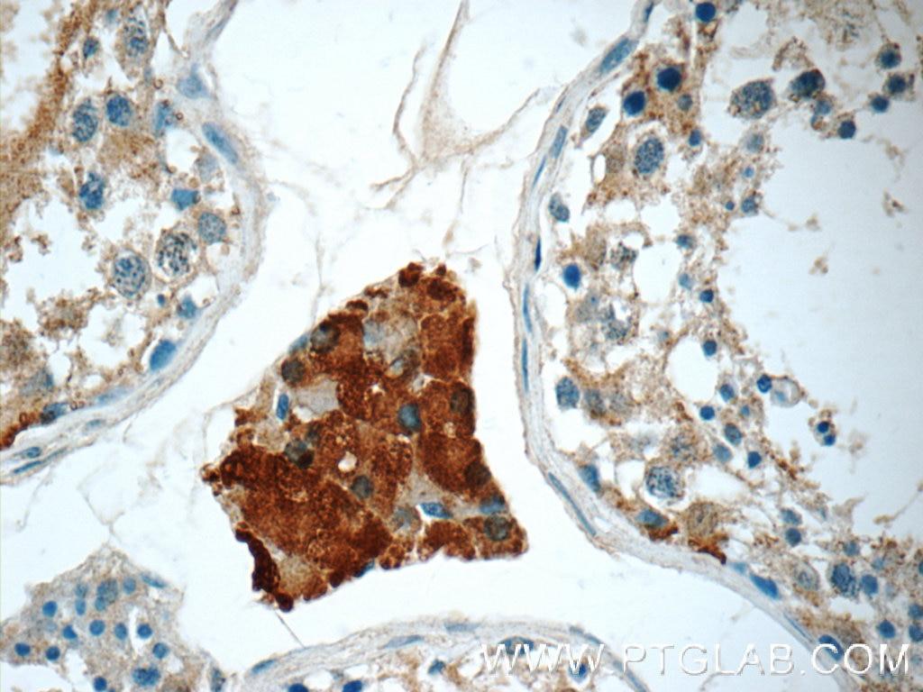 CHMP1A Polyclonal antibody