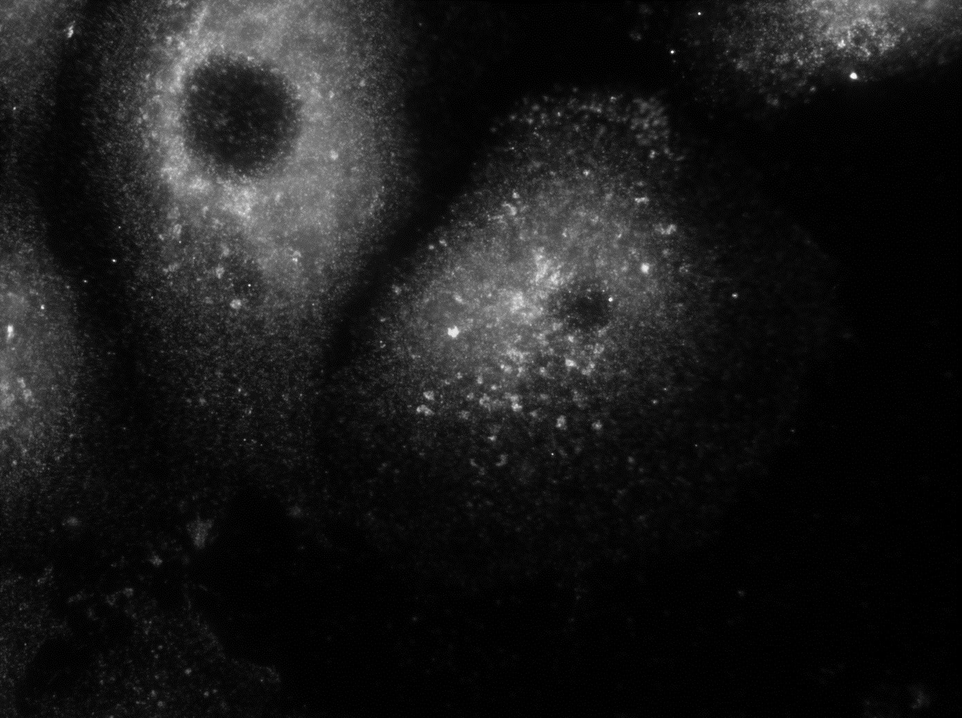 IF Staining of PFA fixed cells using 12527-1-AP