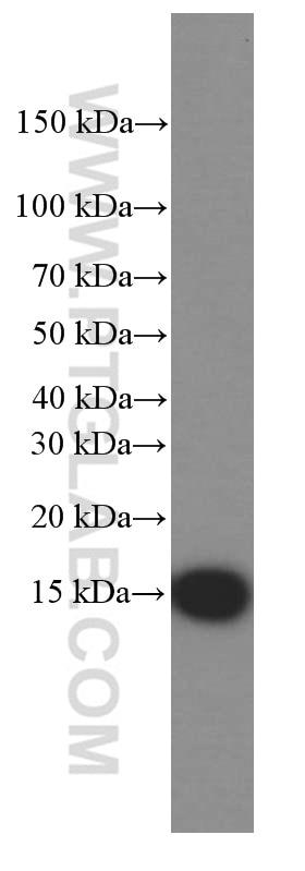 WB analysis of fetal human brain using 66082-1-Ig