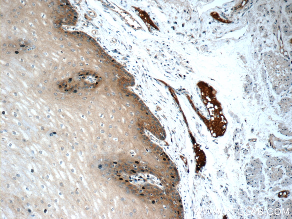 IHC staining of human oesophagus using 19273-1-AP