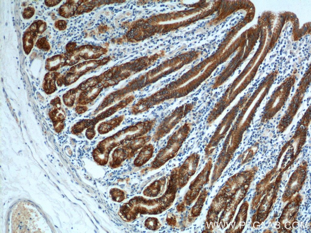 IHC staining of human stomach using 21126-1-AP