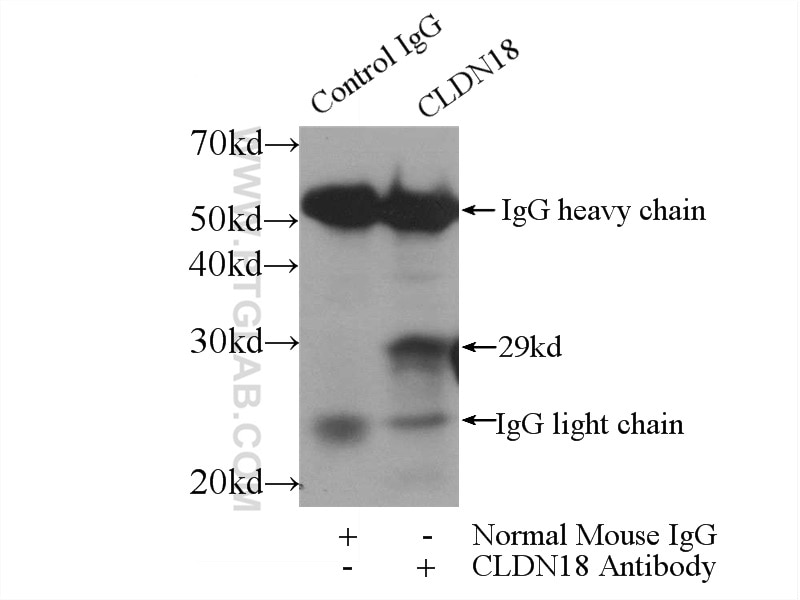 IP experiment of mouse stomach using 66167-1-Ig