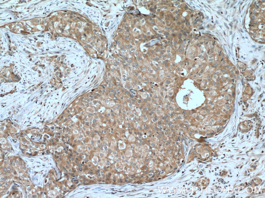 IHC staining of human breast cancer using 16456-1-AP