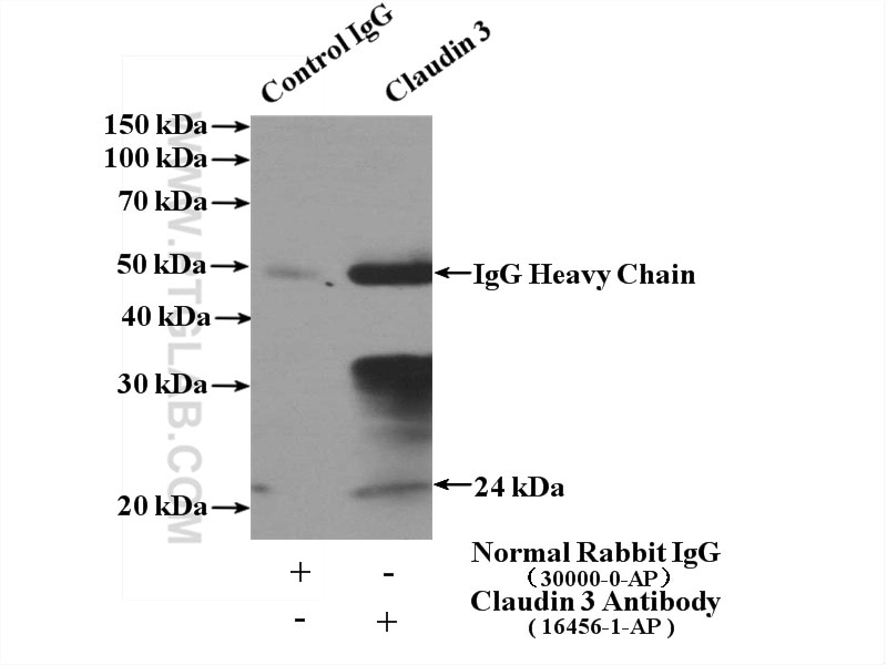 IP experiment of mouse large intestine using 16456-1-AP