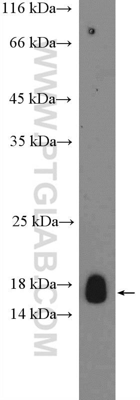 Claudin 3 Polyclonal antibody