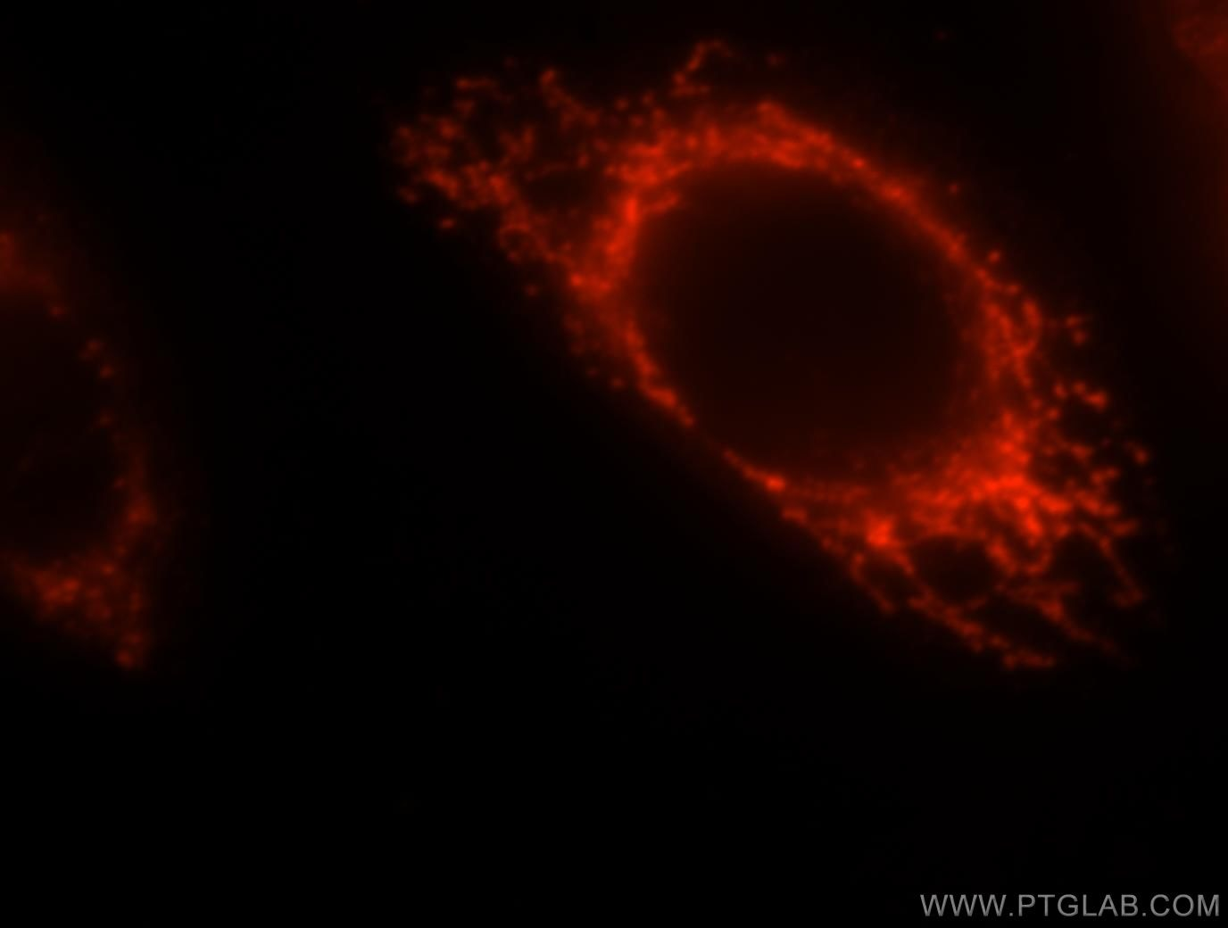 IF Staining of HeLa using 15698-1-AP