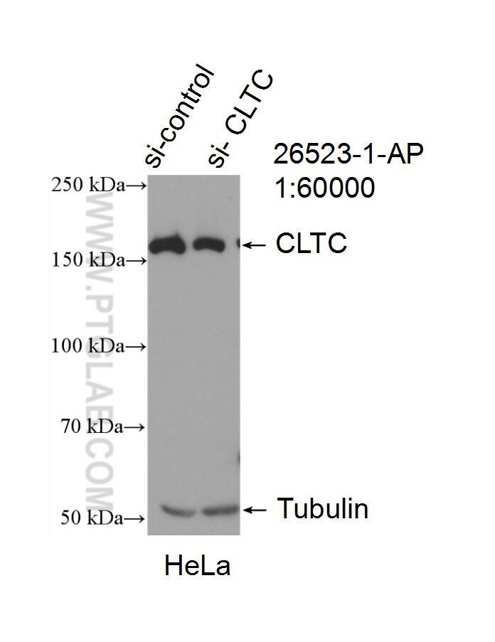 WB analysis of HeLa using 26523-1-AP