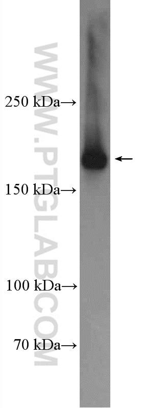 CLTC Polyclonal antibody