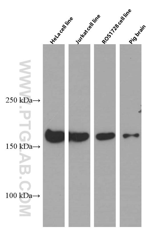 WB analysis of HeLa using 66487-1-Ig