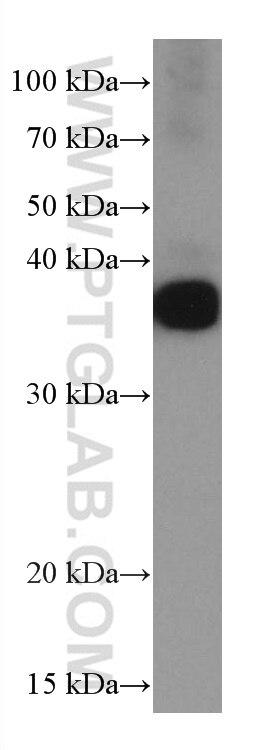 WB analysis of human plasma using 66109-1-Ig