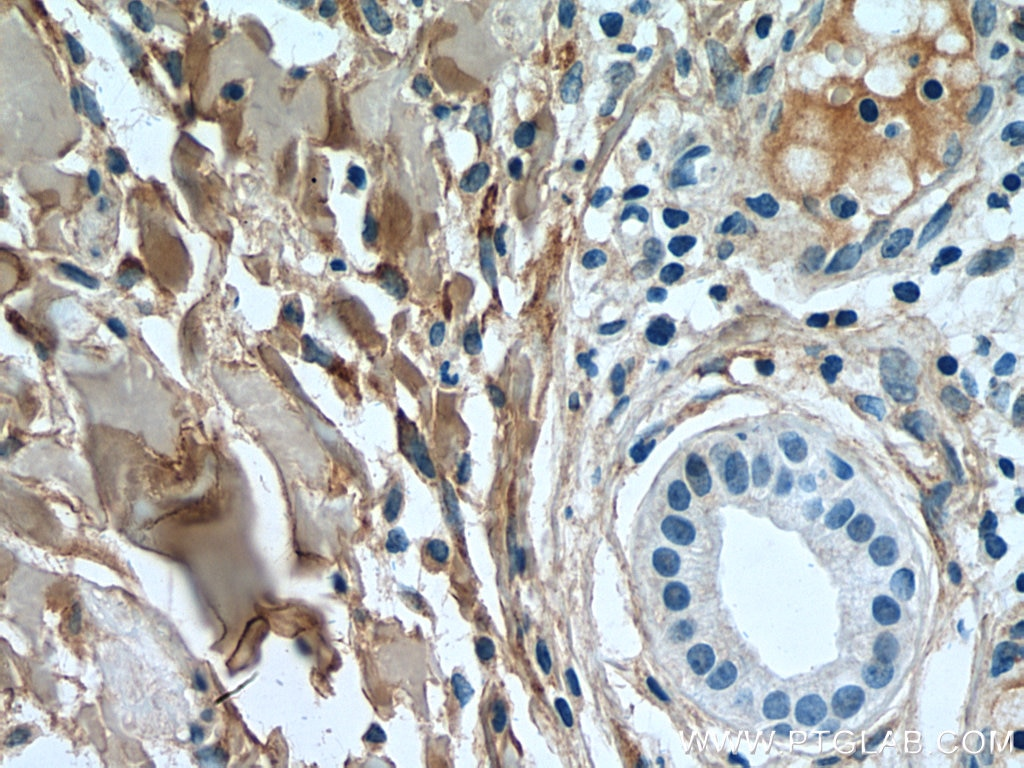 IHC staining of human skin cancer using 14695-1-AP