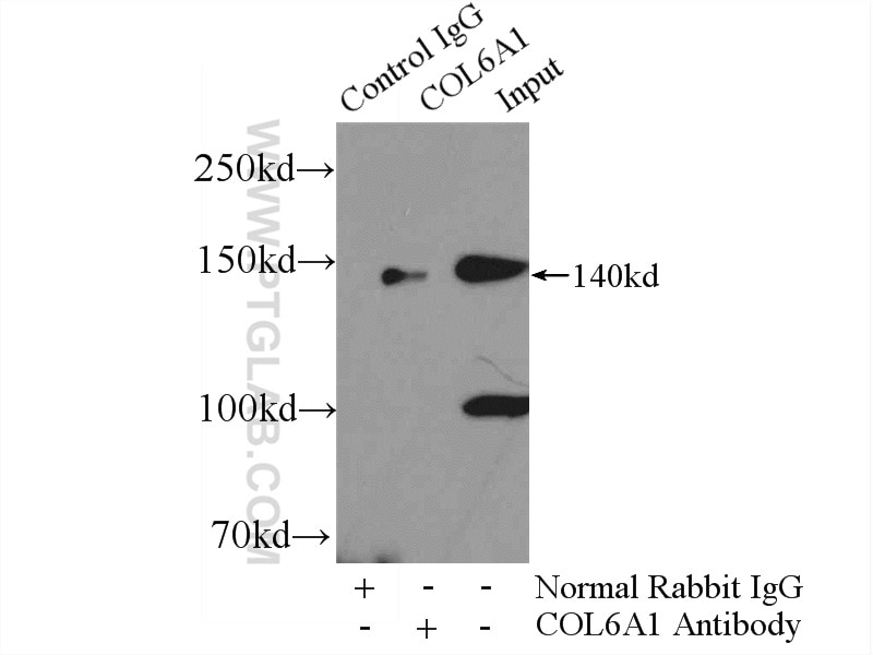 IP experiment of mouse heart using 17023-1-AP