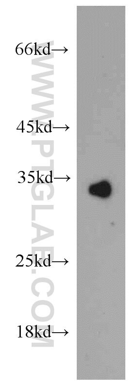 WB analysis of mouse liver using 15269-1-AP