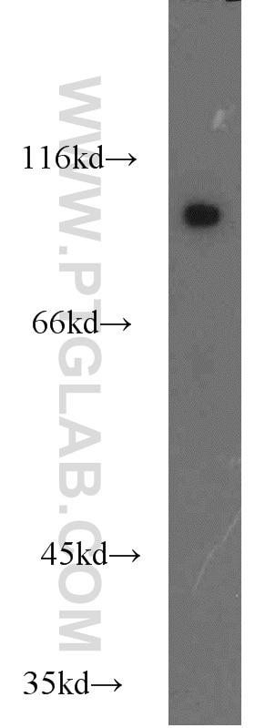 COPG2 Polyclonal antibody